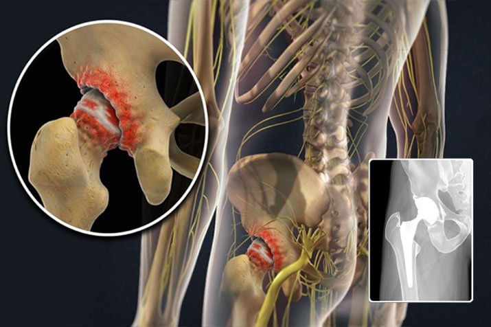 Total Joint Surgery Can Often be the Best Option